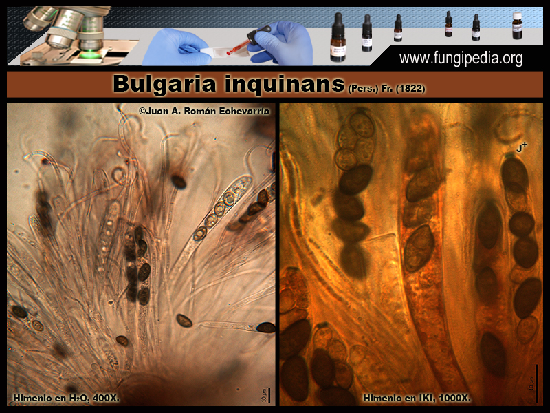 8-2Bulgaria_inquinans_Microscopia_Microscopy_2020-03-25.jpg