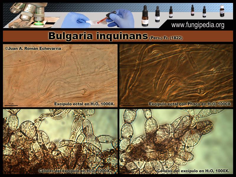 8-3Bulgaria_inquinans_Microscopia_Microscopy_2020-03-25.jpg