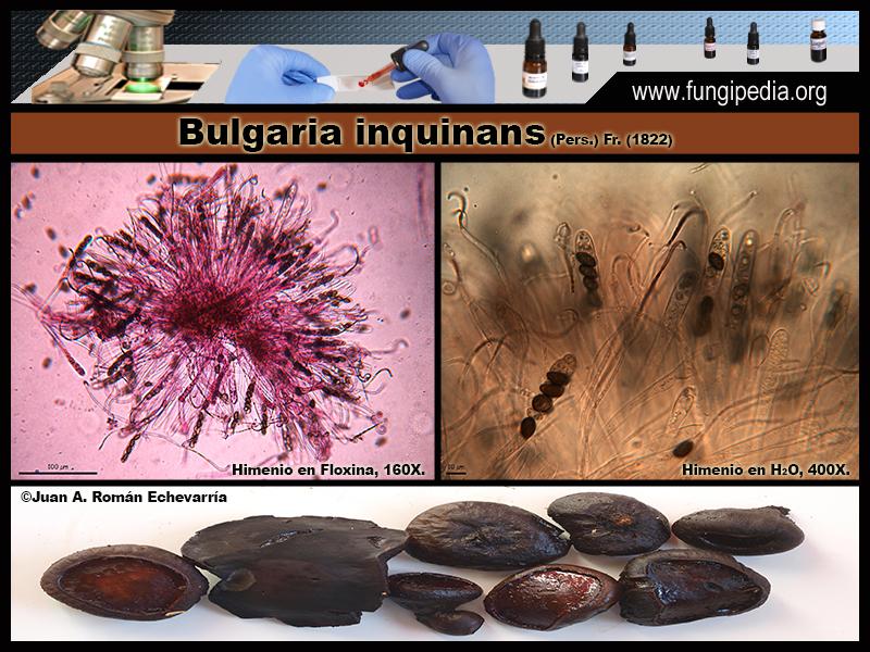 8-4Bulgaria_inquinans_Microscopia_Microscopy.jpg