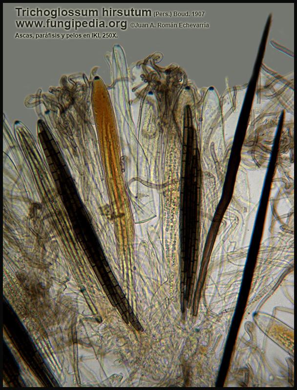 8Trichoglossum_hirsutum_Ascas_Parafisis_Pelos_Microscopy.jpg