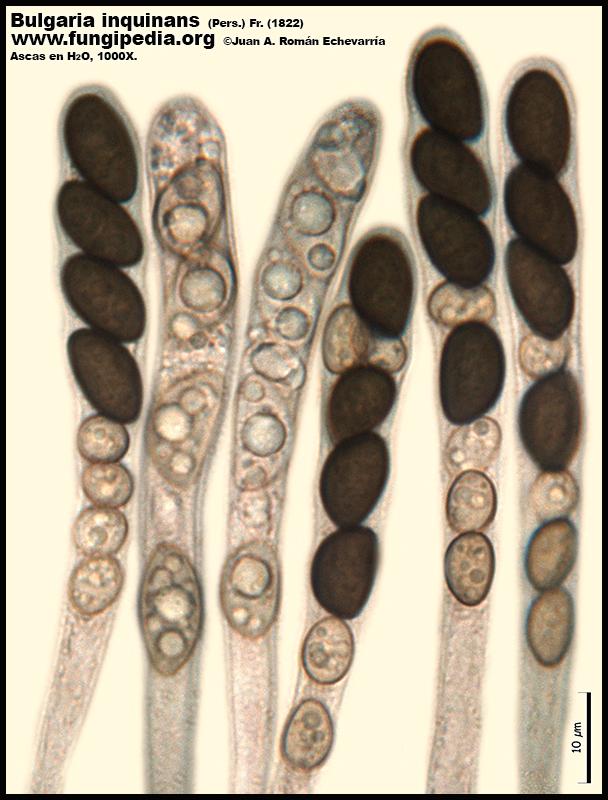 9-4Bulgaria_inquinans_Microscopia_Microscopy.jpg