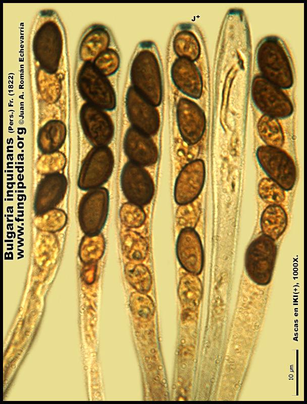 9-5Bulgaria_inquinans_Microscopia_Microscopy.jpg