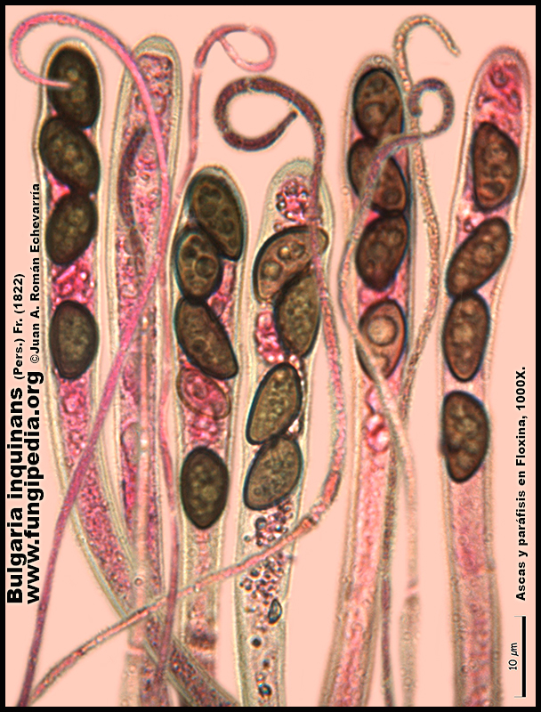 9-6Bulgaria_inquinans_Microscopia_Microscopy.jpg