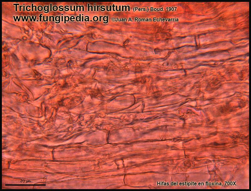 9Trichoglossum_hirsutum_Hifas_del_estipite_Mycroscopy.jpg
