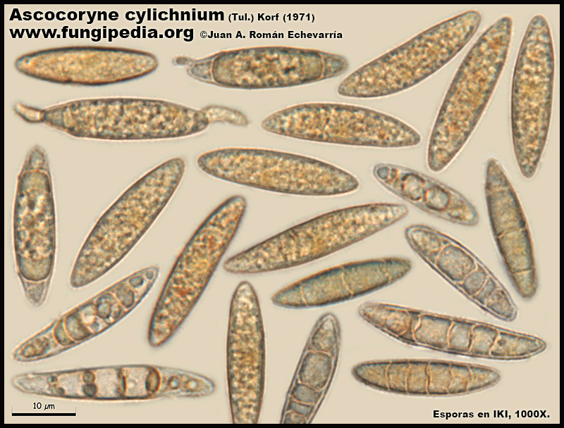 Ascocoryne_cylichnium_Microscopia_Microscopy10.jpg