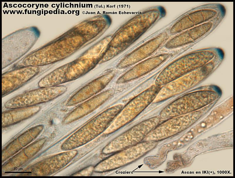 Ascocoryne_cylichnium_Microscopia_Microscopy15.jpg