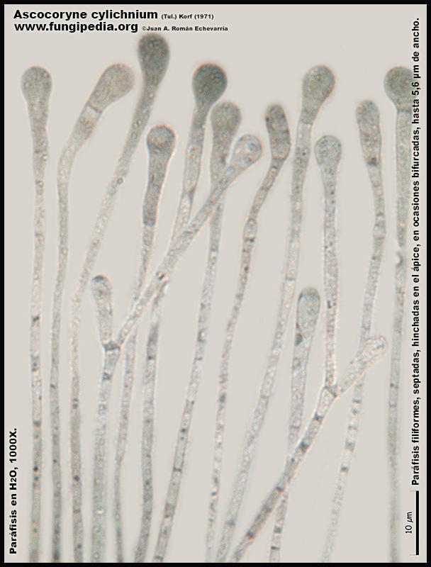 Ascocoryne_cylichnium_Microscopia_Microscopy16.jpg