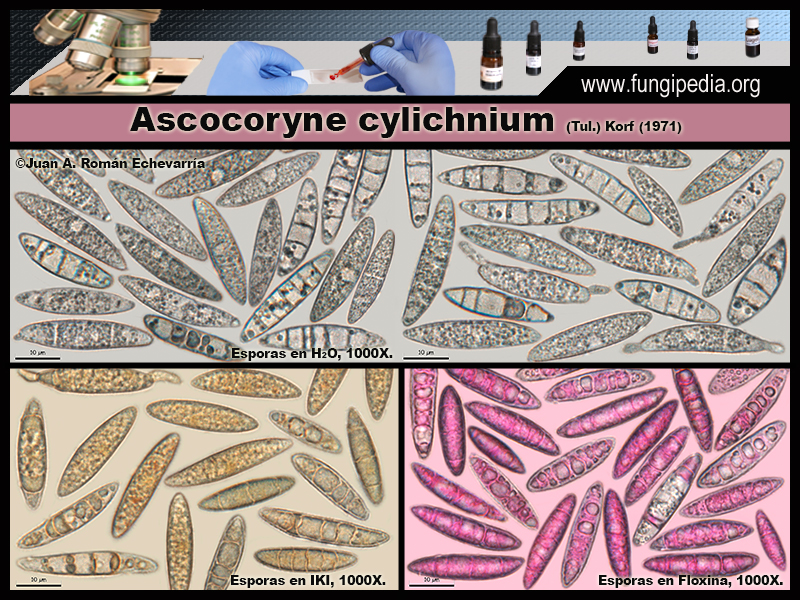 Ascocoryne_cylichnium_Microscopia_Microscopy3.jpg