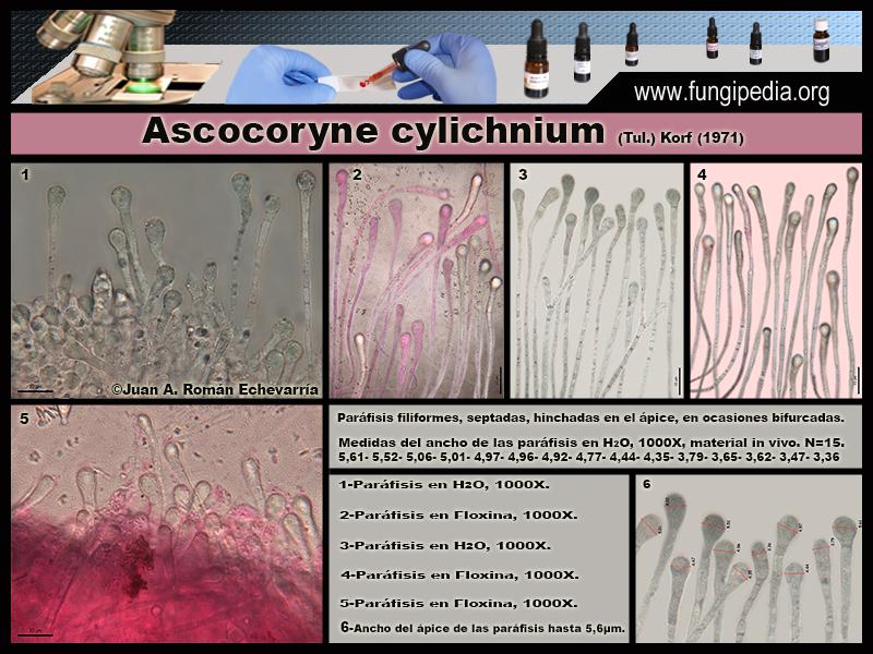 Ascocoryne_cylichnium_Microscopia_Microscopy4.jpg