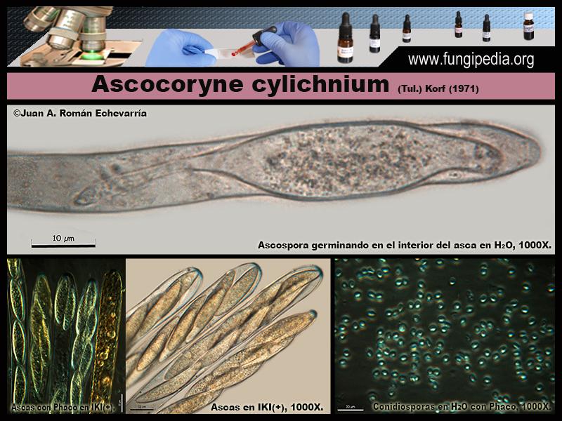 Ascocoryne_cylichnium_Microscopia_Microscopy7.jpg