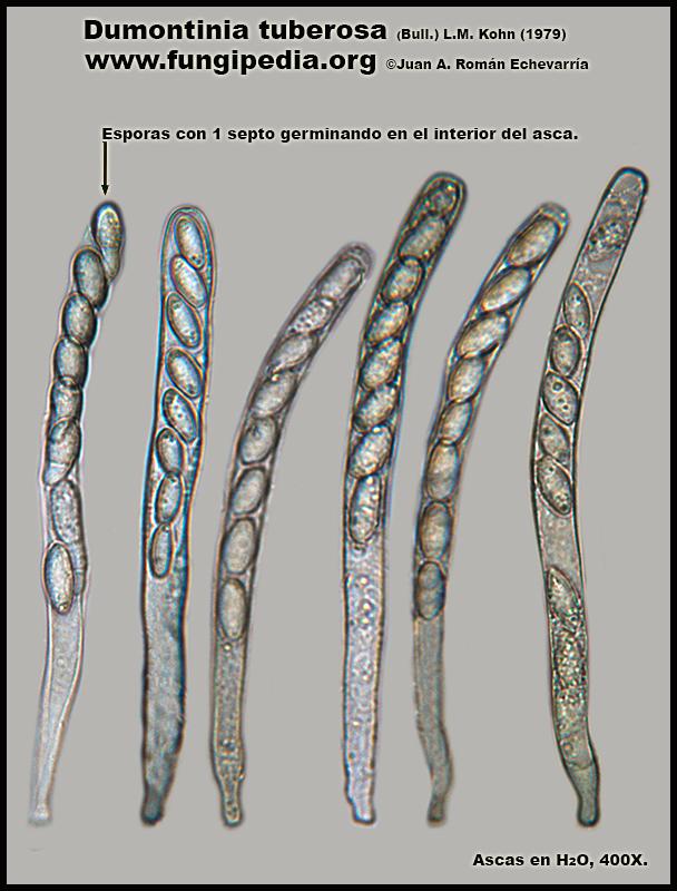 Dumontinia_tuberosa_Ascas_Agua_Microscopia_Microscopy.jpg