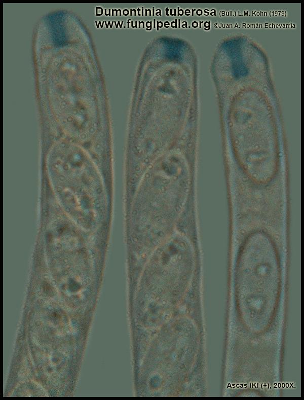 Dumontinia_tuberosa_Ascas_IKI_Microscopia_Microscopy.jpg