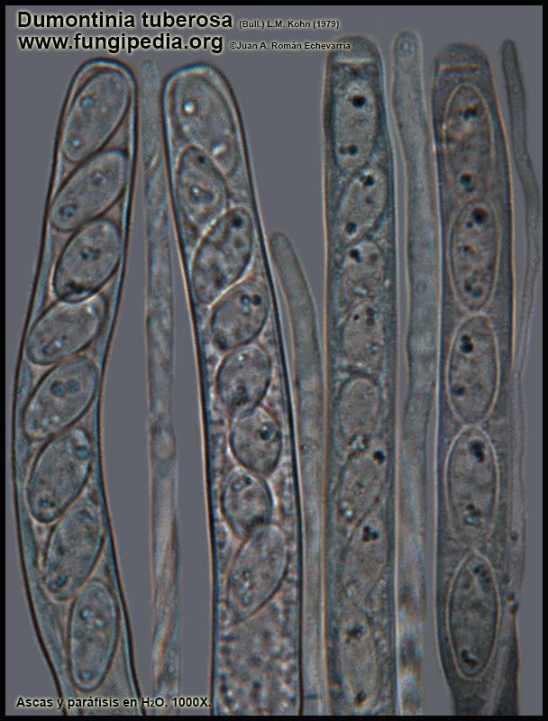 Dumontinia_tuberosa_Ascas_Parafisis_Microscopia_Microscopy.jpg