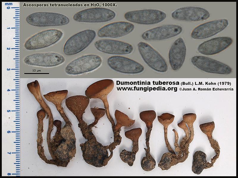 Dumontinia_tuberosa_Microscopy_Microscopia.jpg