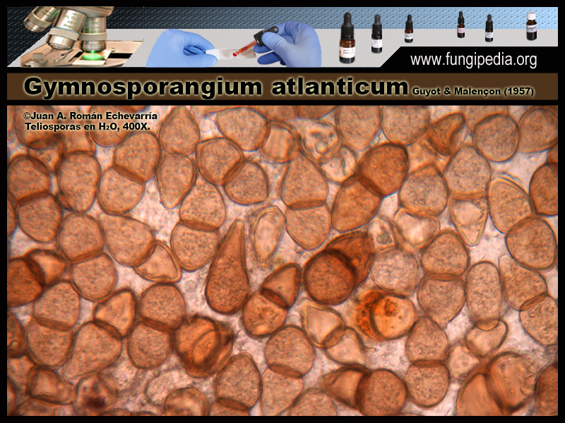 Gymnosporangium_atlanticum_Microscopia_Microscopy0-2.jpg