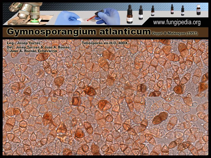 Gymnosporangium_atlanticum_Microscopia_Microscopy0-3.jpg