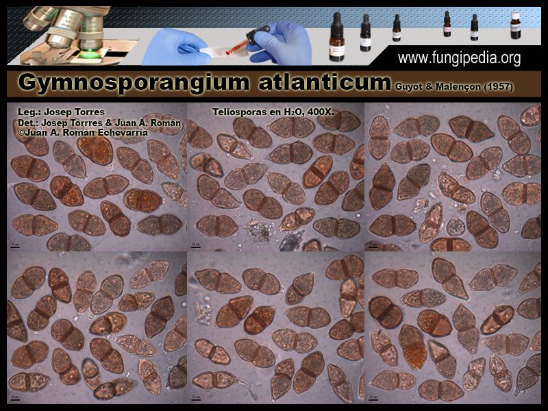 Gymnosporangium_atlanticum_Microscopia_Microscopy0-5.jpg