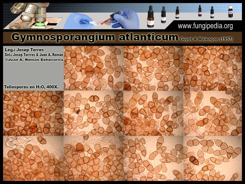 Gymnosporangium_atlanticum_Microscopia_Microscopy0-6.jpg