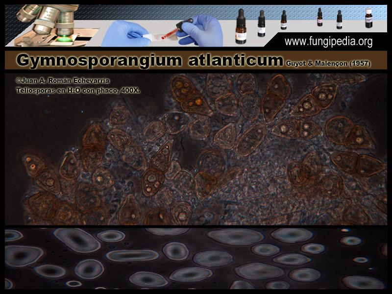 Gymnosporangium_atlanticum_Microscopia_Microscopy0-8.jpg