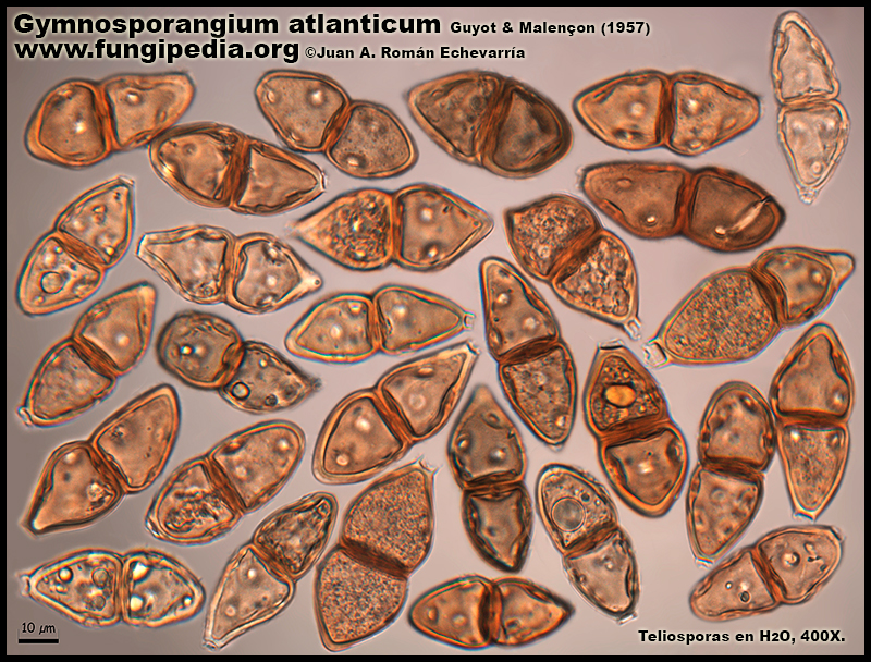 Gymnosporangium_atlanticum_Microscopia_Microscopy1-2.jpg