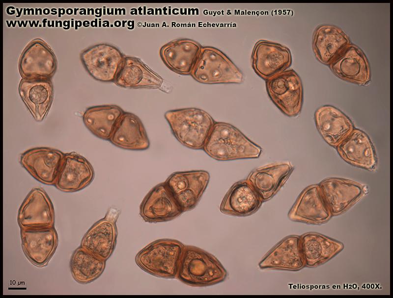 Gymnosporangium_atlanticum_Microscopia_Microscopy1-5.jpg