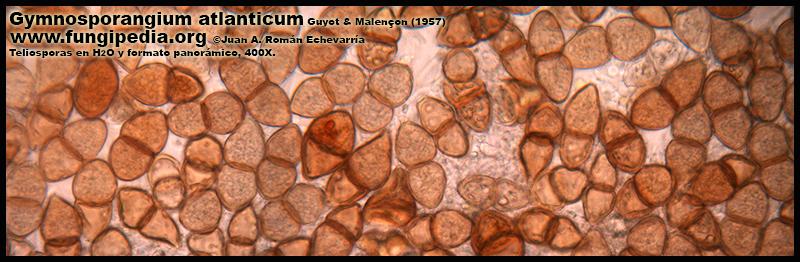 Gymnosporangium_atlanticum_Microscopia_Microscopy1-7.jpg