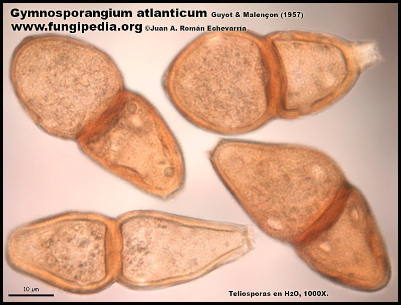 Gymnosporangium_atlanticum_Microscopia_Microscopy6-0.jpg