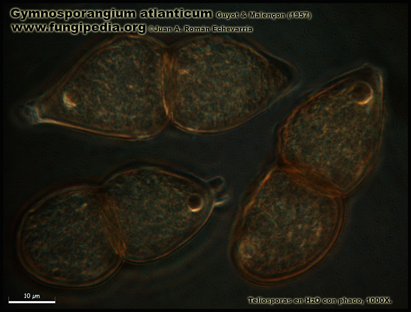 Gymnosporangium_atlanticum_Microscopia_Microscopy6-1.jpg