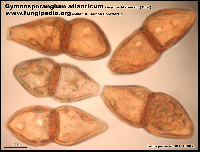 Gymnosporangium_atlanticum_Microscopia_Microscopy9-0.jpg
