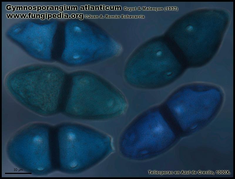 Gymnosporangium_atlanticum_Microscopia_Microscopy9-2.jpg