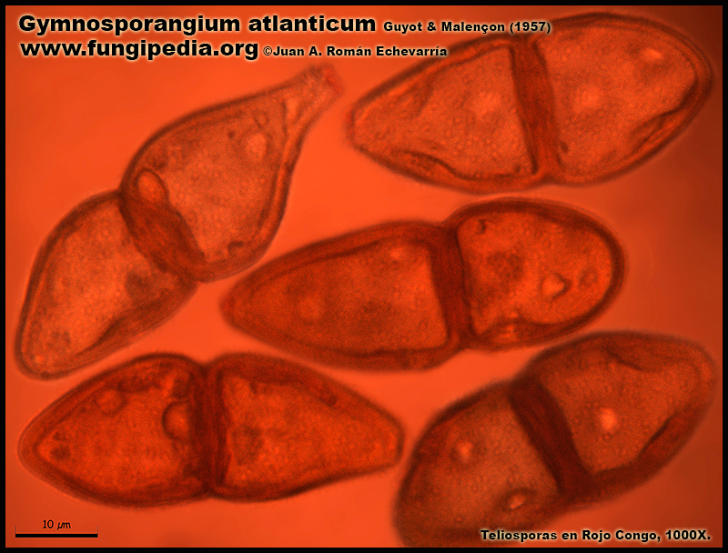 Gymnosporangium_atlanticum_Microscopia_Microscopy9-4.jpg