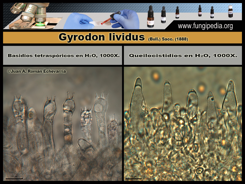 Gyrodon_lividus_Microscopia_Microscopy2.jpg