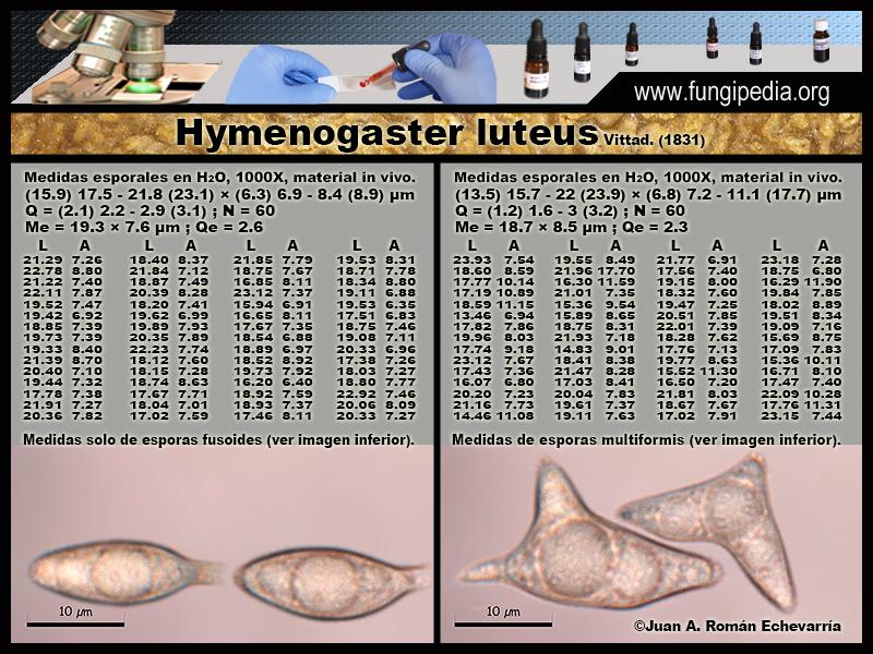 Hymenogaster_luteus_Microscopia_Microscopy1-2.jpg