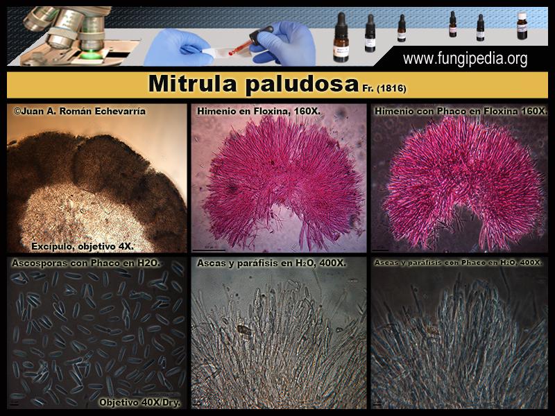 Mitrula_paludosa_Microscopia_Microscopy3.jpg