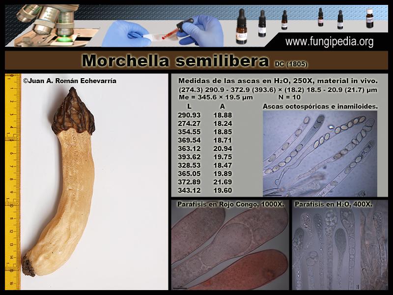 Morchella_semilibera_Microscopia_Micrsoscopy-2.jpg