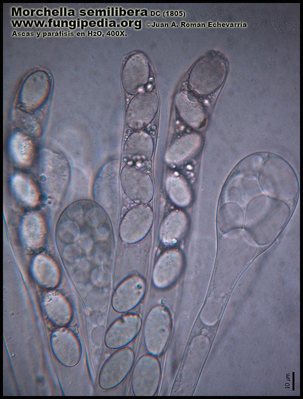 Morchella_semilibera_Microscopia_Micrsoscopy-4-8.jpg