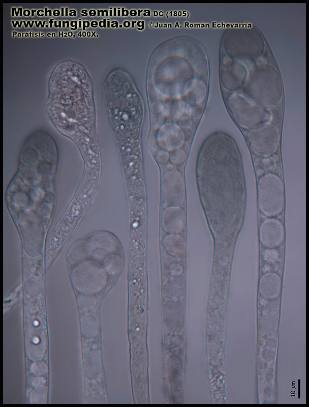 Morchella_semilibera_Microscopia_Micrsoscopy-4-9.jpg