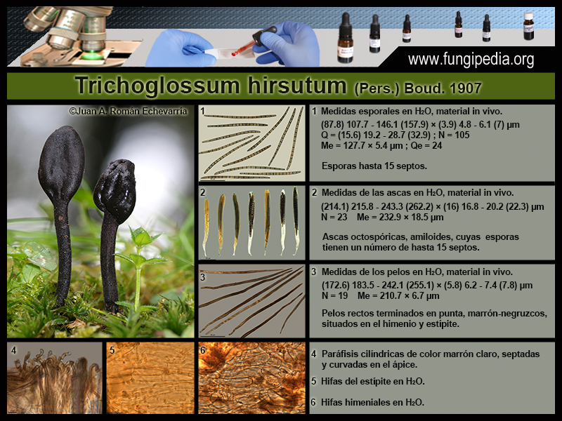 Trichoglossum_hirsutum_Microscopy.jpg