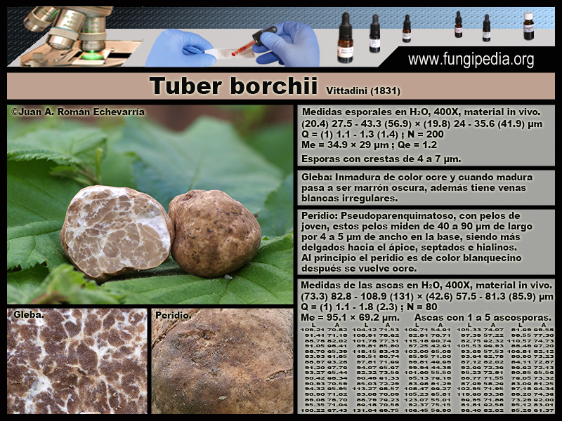 Tuber_borchii_Microscopia_Microscopy.jpg