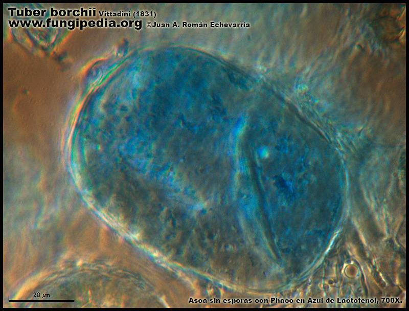 Tuber_borchii_Microscopia_Microscopy11.jpg