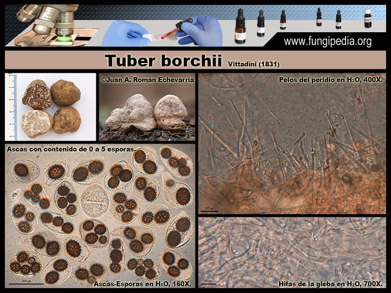Tuber_borchii_Microscopia_Microscopy2.jpg