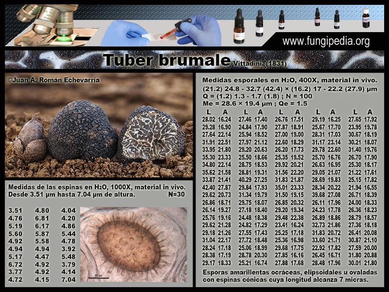 Tuber_brumale_Microscopia_Microscopy0-1.jpg