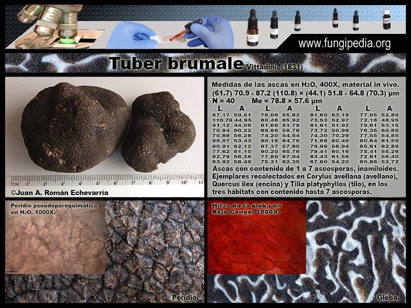 Tuber_brumale_Microscopia_Microscopy0-2.jpg