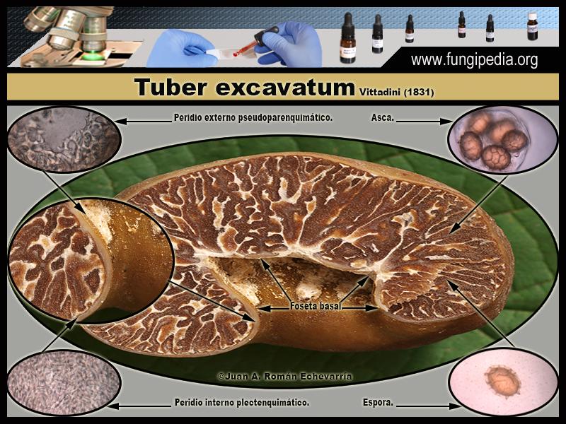 Tuber_excavatum_Microscopia_Microscopy1-3.jpg