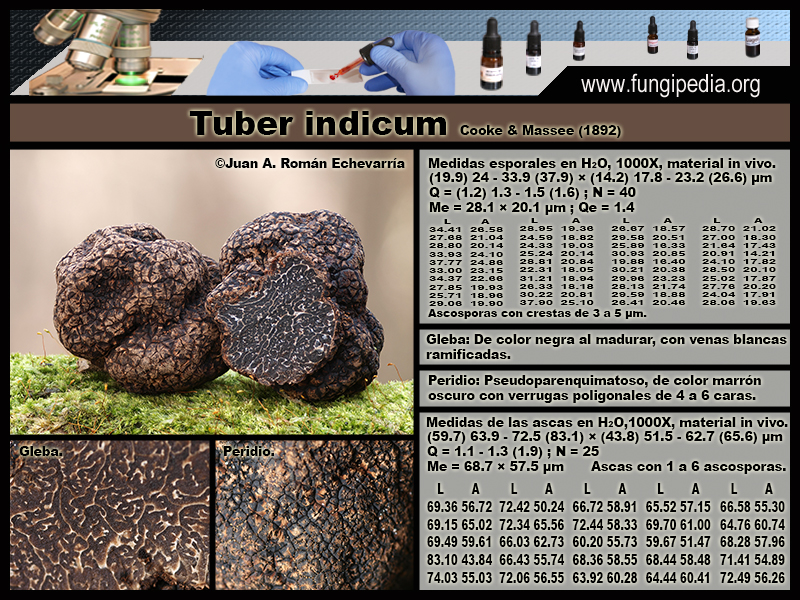 Tuber_indicum_Microscopia_Microscopy.jpg