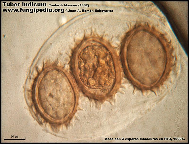 Tuber_indicum_Microscopia_Microscopy12.jpg