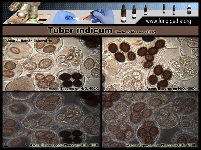 Tuber_indicum_Microscopia_Microscopy3.jpg