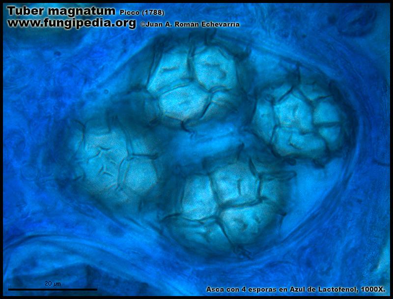 Tuber_magnatum_Ascas_Esporas_Lactofenol4.jpg