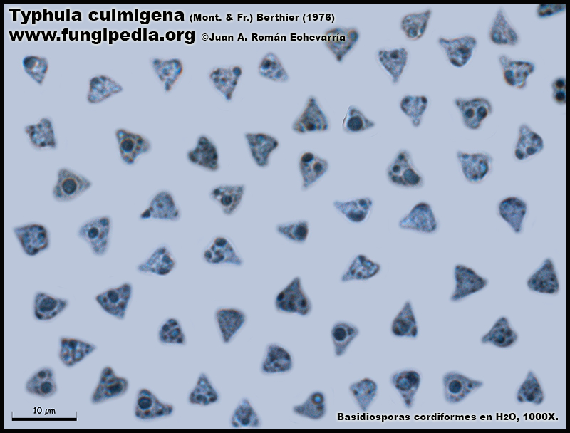 Typhula_culmigena_Esporas_Microscopia_Microscopy.jpg