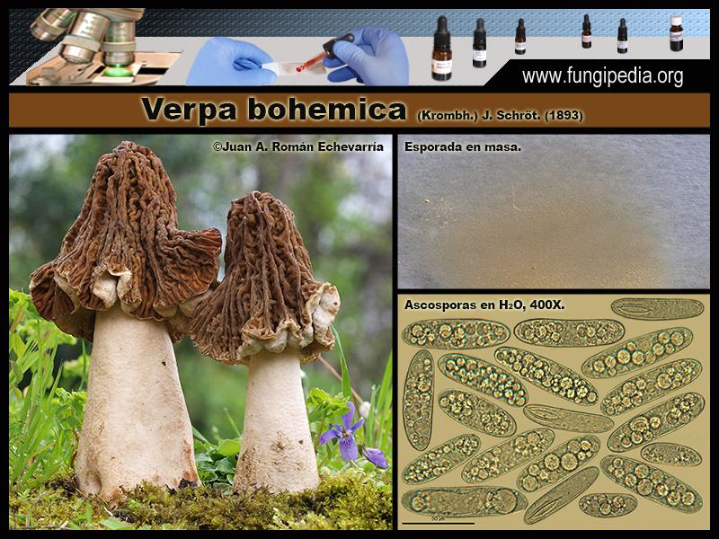 Verpa_bohemica_Microscopia_Microscopy.jpg